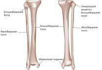 Малая берцовая кость: где находится, функции, варианты переломов и их лечение