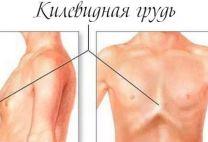 Килевидная грудная клетка: причины, виды, симптомы и лечение этого заболевания