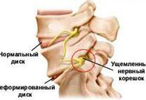 Защемление нерва в грудном отделе: как проявляется и лечится такое состояние