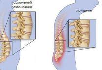 Туберкулез позвоночника: причины, симптомы и современное лечение