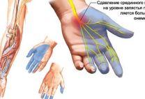 Нейропатия: классификация, ее проявления и методы лечения