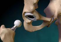 Эндопротезирование (замена) тазобедренного сустава: показания, виды операции, как она проходит, цены