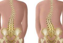 Кифосколиоз грудного отдела: причины, симптомы и лечение этого заболевания
