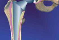 Как проводится реабилитация после эндопротезирования (замены) тазобедренного сустава