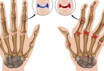 Суставы кисти: анатомия, основные функции, возможные травмы и болезни