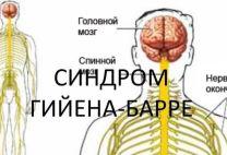 Синдром Гийена-Барре: причины, виды, симптомы и принципы лечения этого заболевания