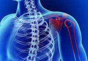 Хруст в плечевом суставе: на какие болезни указывает и что делать