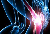 Травмы колена: виды и их симптомы, лечение, первая помощь