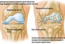 Артроз коленного сустава 2 степени: причины, диагностика и лечение