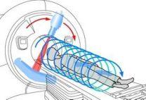 Спиральная компьютерная томография: как и при каких состояниях проводится, отзывы, стоимость обследования в Москве