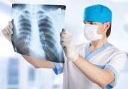 Рентген грудной клетки: что позволяет увидеть, виды такого исследования и его стоимость в Москве