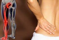 Защемление нерва в ноге: проявления и способы коррекции такого состояния