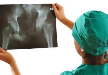 Как лечить коксартроз тазобедренного сустава 1 степени