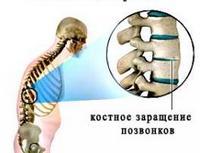 Какой бывает деформирующий артроз суставов