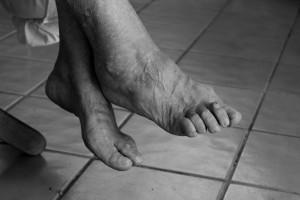 лечение деформирующего артроза стопы