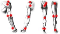 поражение симметричных суставов
