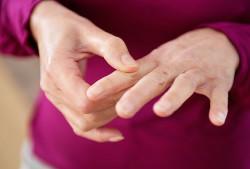 форма тяжелый артрит