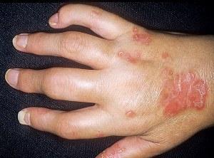 псориатический артрит (фото)