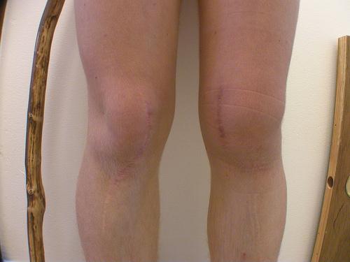 pochemu-bolyat-kolennie-sustavi-v-molodom-vozraste