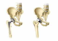 полное и частичное эндопротезирование тазобедренного сустава