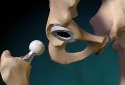 фото протеза тазобедренного сустава
