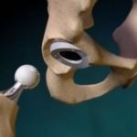 Операция замены тазобедренного сустава (эндопротезирование): кому нужно делать эту операцию, сколько она стоит и как проходит