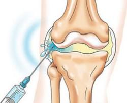 инъекции в коленный сустав препараты