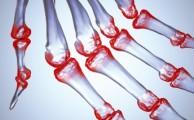 диагностика симптомов ревматоидного артрита