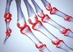 Диагностика при ревматоидном артрите суставов: как врачи ставят этот диагноз