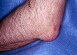 Почему возникают боли в локтевом суставе и как их вылечить