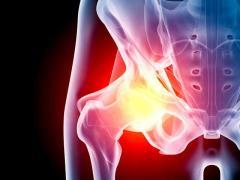Причины болей в тазобедренном суставе: какие болезни ее вызывают?