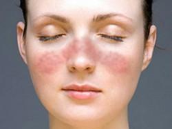 изменения кожи при системной красной волчанке