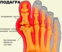 изменения в суставах рук и ног при подагре