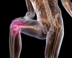 артроз колена - один из самых частых видов артроза