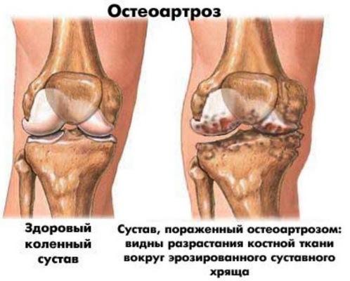 Артроз голеностопного сустава – причины, симптомы,