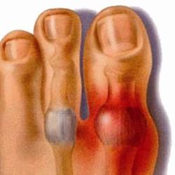 чаще всего подагра поражает большой палец ноги