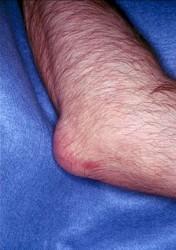 подагра поражает не только суставы ног
