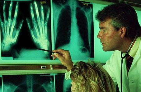 artrit-melkih-sustavov-kistey-ruk-lechenie