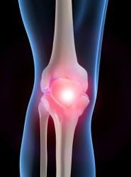 артроз иногда ошибочно называют отложением солей в различных суставах