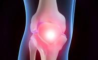 артроз иногда ошибочно называют отложением солей в суставах