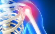 причины болей в суставе плеч