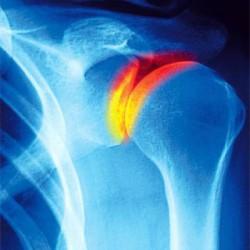 артрит плечевого сустава - одно из причин болей в плече