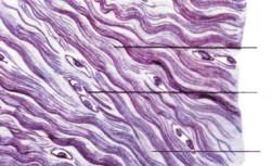 коллагеновые волокна и хондроциты в хрящевой ткани