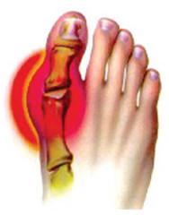 инфекционный артрит пальца ноги