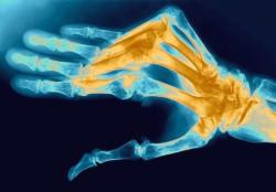 Артрит суставов пальцев рук фото