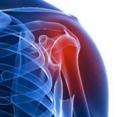 боль в левом плече может быть симптомом артрита