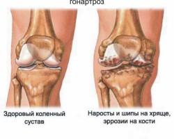 здоровое колено и колено при гонартрозе