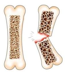 здоровая кость (слева) и перелом кости с остеопорозом (справа)