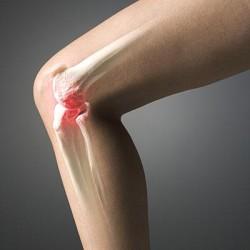 Болит нога в колене при сгибании