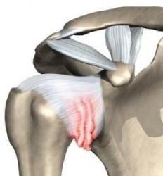 адгезивный капсулит или замороженное плечо